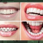 imagen de tipos de ortodoncia consejos brackets clinica dental dra salmeron